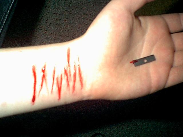Il braccio di tagli.